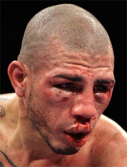 http://www8.gmanews.tv/webpics/infotech/cotto%20bloodied%20face.jpg
